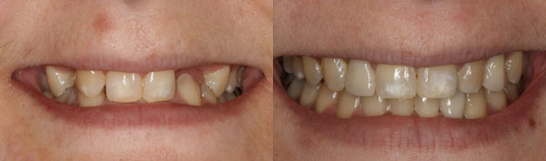 adult-patient-missing-several-teeth-image