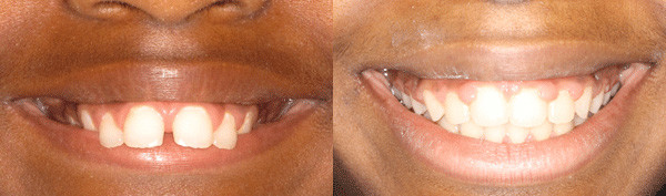 adult-patient-with-a-severe-overbite-image