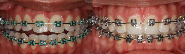 adult-patient-with-incorrectly-placed-braces-image