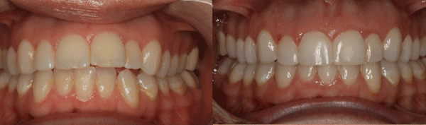 adult-patient-with-missing-teeth-and-misalignment-issues-image