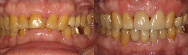 adult-patient-with-worn-down-bite-and-missing-teeth-image