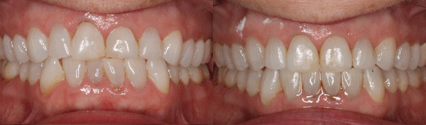 adult-patient-with-worn-down-teeth-and-a-crossbite-image
