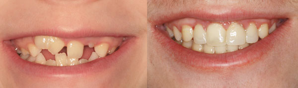 teen-with-extra-and-fused-teeth-image