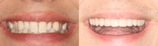 teen-with-undersized-small-upper-lateral-incisors-image