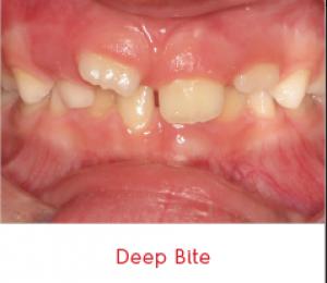 deep-bite