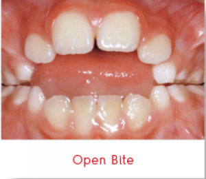 open-bite