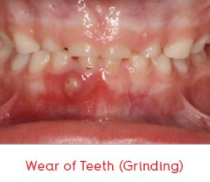 wear_teeth